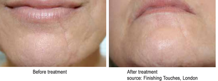 Acne Scar Treatments Natural
