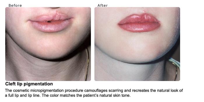 Cleft-lip-pigmentation
